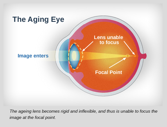 the-ageing-eye